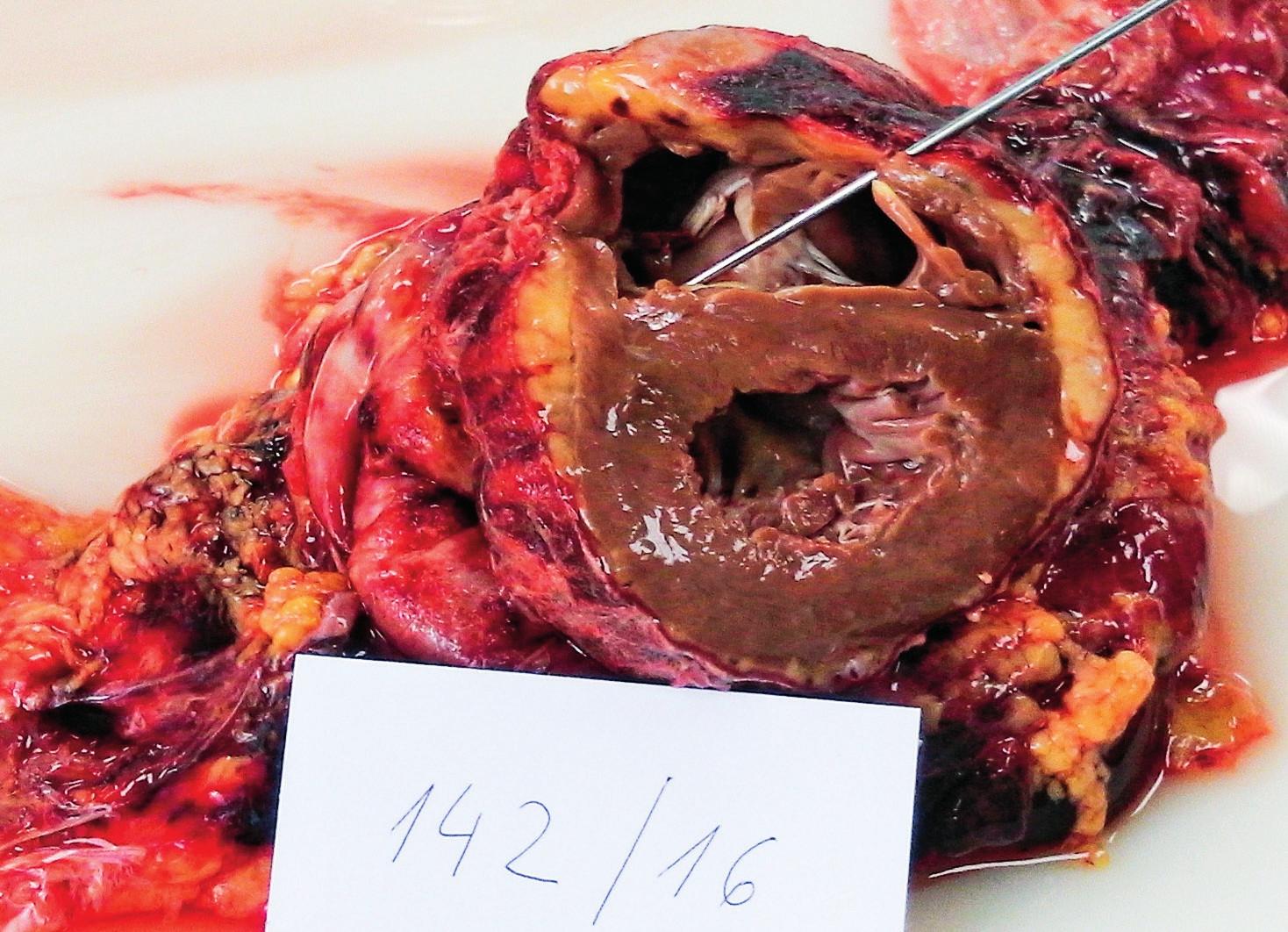 Kazuistika 2 – pitevní nález lacerace pravé komory srdeční
