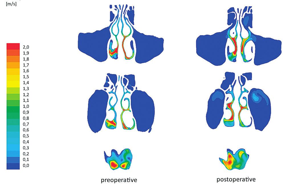 Computational Fluid Dynamics (počítačová analýza proudění vzduchu nosem). Zdroj: www.oatext.com