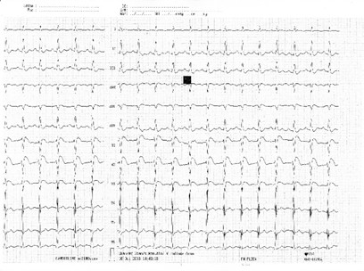 Obr. 1. Křivka EKG při přijetí