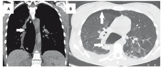 31-ročná pacientka s periprocedurálnou perforáciou pažeráka neošetriteľnú endoskopicky, natívne CT zobrazuje A – defekt steny ezofágu (šípka); B – pravostranný pneumothorax a pneumomediastinum. Fig. 3. 31-year-old patient with periprocedural esophageal perforation untreatable endoscopically, native CT shows A – oesophageal wall defect (arrow); B – right pneumothorax and pneumomediastinum.