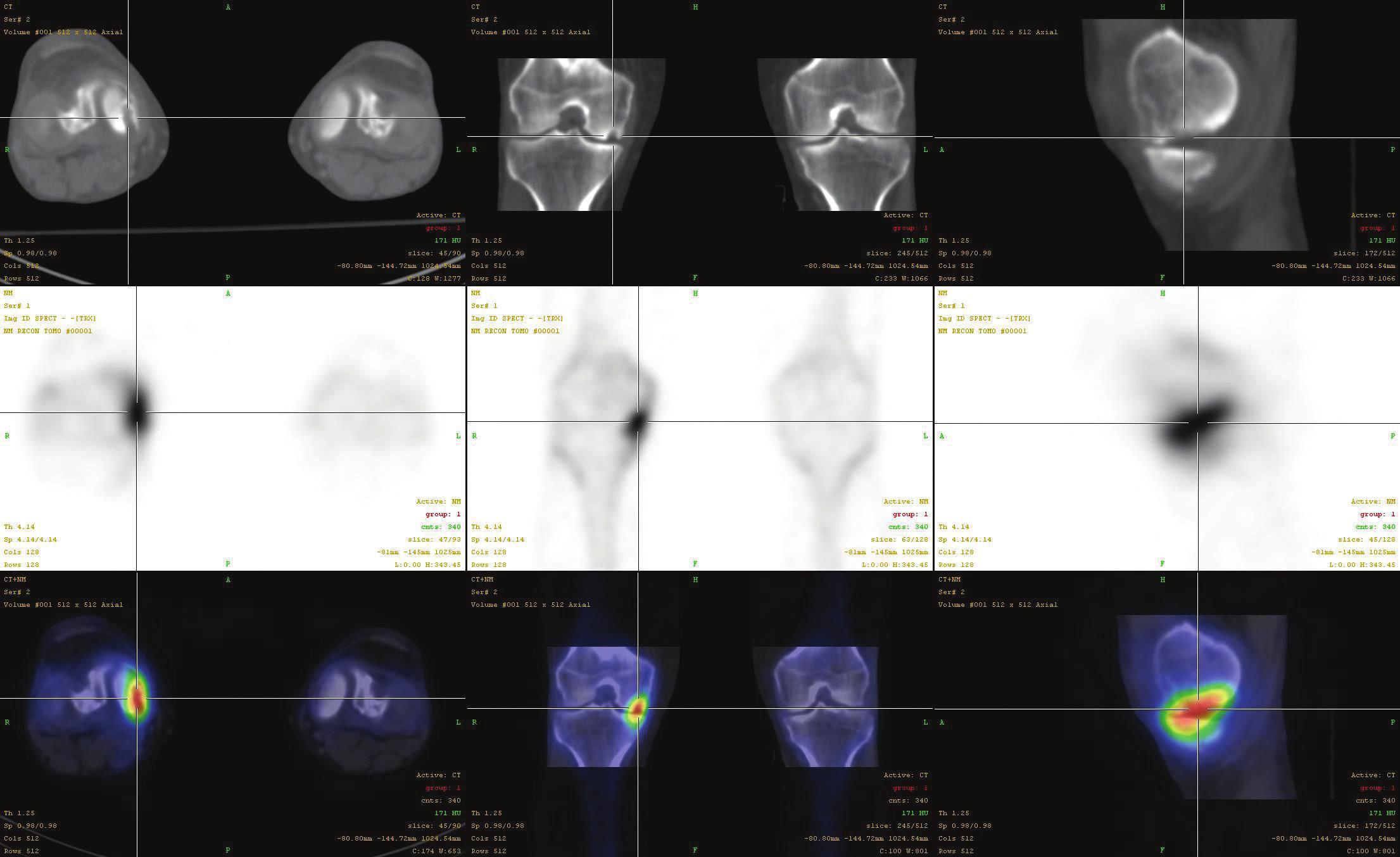 Fúze SPECT/CT obrazu u pacienta s osteochondrálním defektem mediálního kondylu femuru v pozdějším stádiu a s přestavbovou aktivitou i protilehlého konce tibie. V horní řadě je obraz z LDCT postupně v transaxiální, koronární a sagitální rovině. Střední řada ukazuje odpovídající SPECT řezy. Dolní řada prezentuje odpovídající fúzované SPECT/CT řezy. Scintigrafický nález v pozdějších stádiích nemusí být výrazný, nález na LDCT je typický.