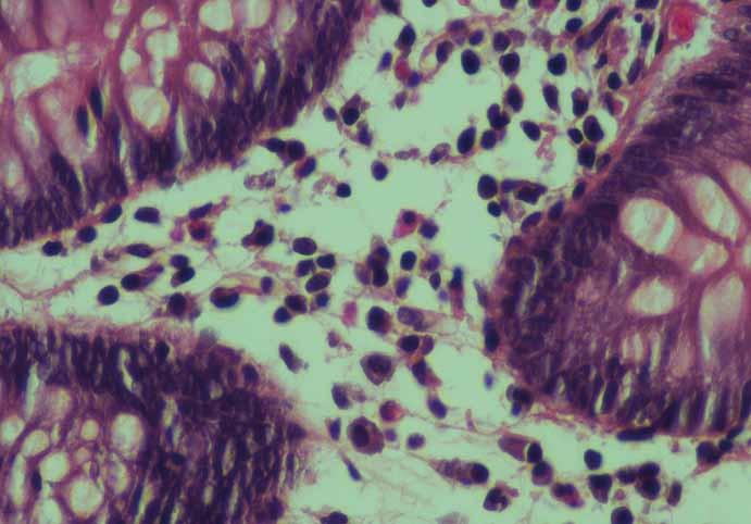 Detail zánětlivé celulizace v lamina propria střevní sliznice s mastocyty (barvení hematoxylin-eozinem, zvětšení 60×).<br> Fig. 1. Detail of the colon mucosa with increased inflammatory cells in the lamina propria with mast cells (Haematoxylin and eosin staining, enlargement 60×).
