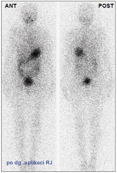 Obr. 1c Celotělová scintigrafie po dg. aplikaci 180 MBq <sup>131</sup>I za 6 měsíců po TERJ – bez reziduální tyreoidální tkáně (stejný pacient jako na Obr. 1a, 1b).