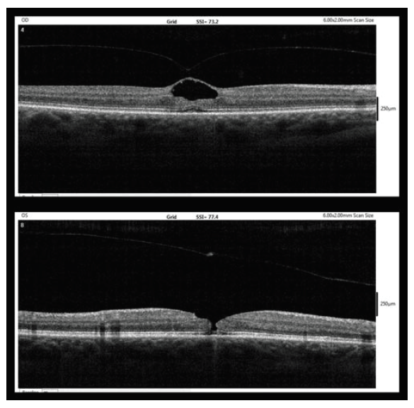 OCT findings after five weeks (9/2017, upper – right eye, lower – left eye)