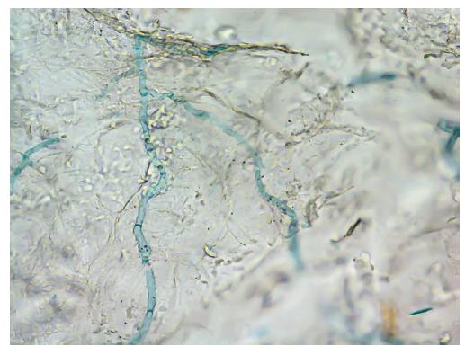 Nález hyf Trichophyton erinacei v přímé mikroskopii kožních šupin z ložiska u pacientky 2 – louhový preparát (10% KOH + Parkerův inkoust); zvětšení 400krát