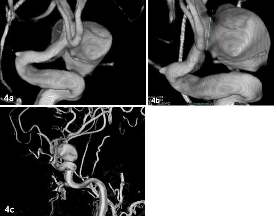 Fig. 4a–c. Angiography 3D reconstructions showing a large anterior choroidal artery aneurysm.<br>