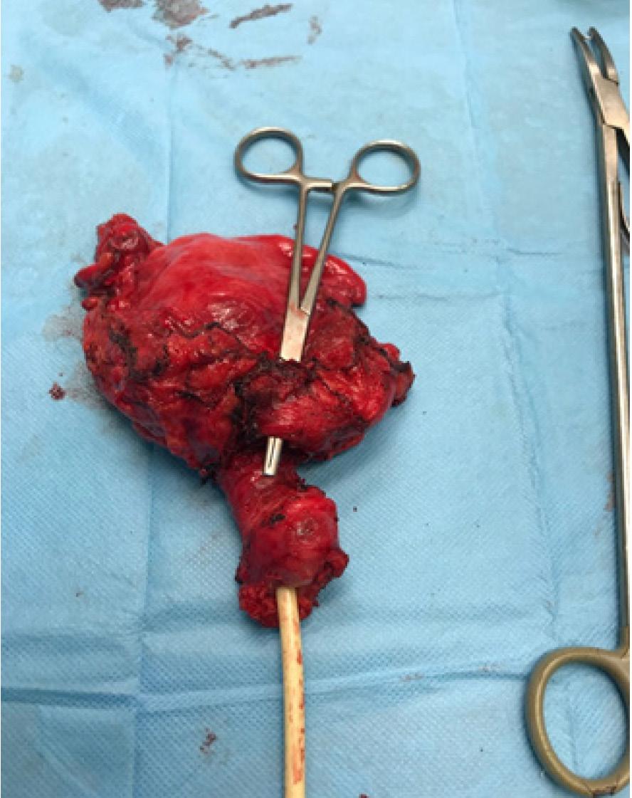 Obr. 4. Preparát odstraněný při cystouretrektomii<br> Fig. 4. Specimen after cystouretrectomy
