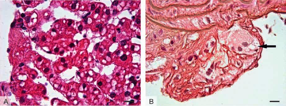 Histologický obraz tkání u patologických stavů spojených s tukovými kapénkami: