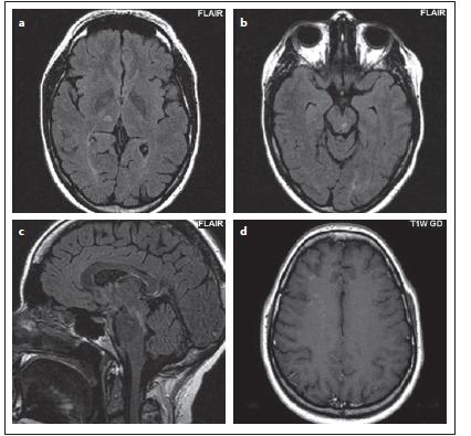 Pacient č. 1: hypersignální oválné ložisko v pravém talamu (a), v mezencefalon (b), kde v sagitálním řezu je patrné (c), jak je ložisko oproti obvyklým ložiskům u roztroušené sklerózy více protáhlé, jinak ale obě ložiska imitují plaky u roztroušené sklerózy, jsou ostře ohraničená, u ložiska v talamu přichází v rámci diferenciálně diagnostické úvahy i lakunární infarkt. Po podání kontrastní látky byl patrný enhancement drobných tečkovitých ložisek subkortikálně, především frontálně vpravo (d).<br> Fig. 9. Patient No. 1: a hypersignal ovoid lesion in the right thalamus (a); in the mesencephalon (b), where elongation of the lesion in the sagittal section is evident (c). Both lesions mimic plaques in multiple sclerosis and are sharply delineated. Lacunar infarction is also a possible differential diagnosis of thalamic lesion. After contrast medium administration, the enhancement of the miniscule spotted foci was observed subcortically, mainly in the right frontal lobe (d).