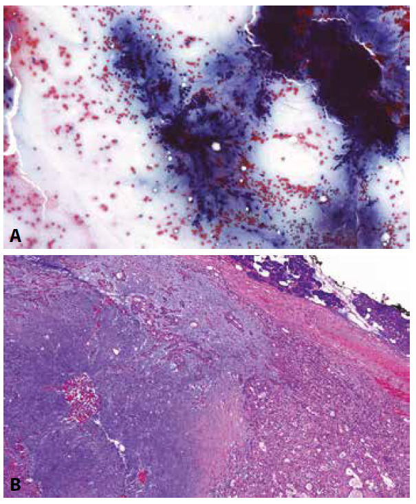Pleomorfní adenom příušní žlázy (PA).