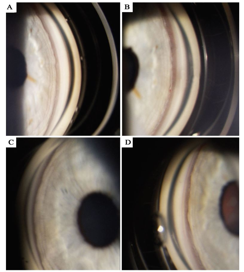 Gonioskopická fotografie dokumentující konfiguraci komorového úhlu, A) pravé oko před vysazením trazodonu, B) pravé oko po vysazení trazodonu, C) levé oko před vysazením trazodonu, D) levé oko po vysazení trazodonu.