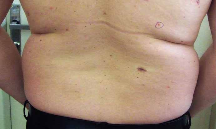 Pohľad na dolnú časť chrbáta s viacpočetnými bazocelulárnymi karcinómami kože.