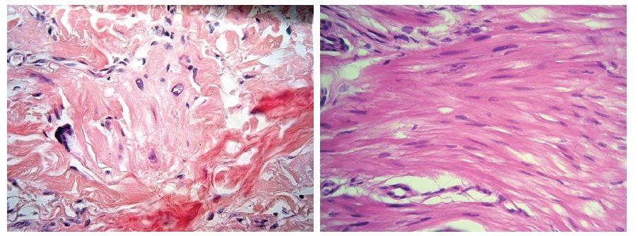 a, b. Místy mají buňky hyperchromní pleomorfní jádra (a), místy jsou vřetenitého charakteru (b)
