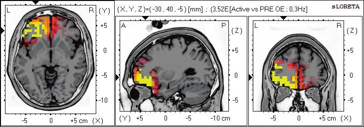 Statistické ne-parametrické mapy sLORETA diference v alfa-2 pásmu při porovnání aktivního provedení pohybu oproti klidovému záznamu při otevřených očích. Červená a žlutá barva znamená zvýšení zdrojové aktivity ve frontálních oblastech BAs 11, 47, 10. Anatomické řezy Talairachova obrazu mají šedou barvu (L – vlevo, R – vpravo).