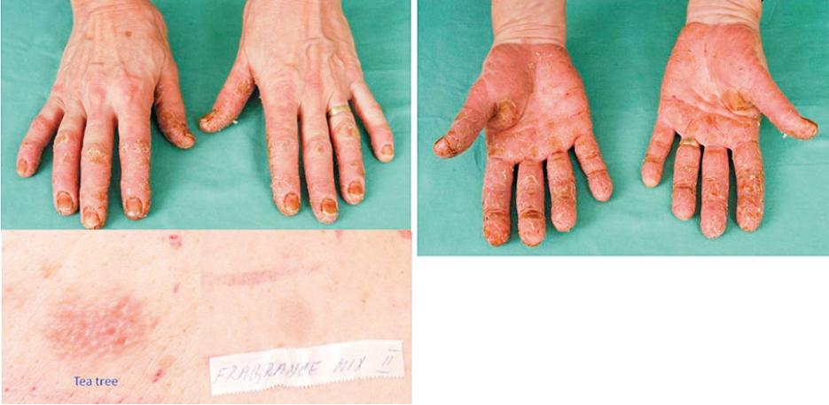 Eczema contactum et atopicum – tea tree+++, fragrance mix II++ (kosmetické přípravky), kumarin++, ol. Pini++, nikl+++ (bižuterie) – elektrotechnička