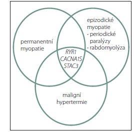 Klinické manifestace genových mutací u svalových chorob, které se podílejí na citlivosti k maligní hypertermii.<br> Fig. 1. Clinical manifestations of gene mutations in muscular diseases that contribute to the sensitivity to malignant hyperthermia.