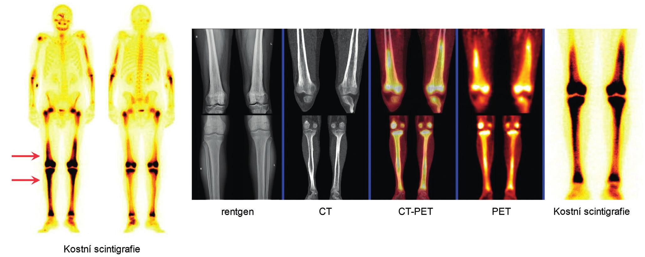 Pro Erdheimovu-Chesterovu nemoc je typická osteoskleróza dlouhých kostí dolních končetin<br> Velmi dobře ji znázorňuje scintigrafie kostí (radiofarmakum technecium pyrofosfát), ale je velmi dobře prokazatelné pomocí FDG-PET/CT zobrazení, které zobrazí zvýšenou akumulaci fluorodeoxyglukózy ve stejných lokalizacích. Na rentgenovém či CT zobrazení těchto lokalit se zvýšenou akumulací Tc-pyrofosfátu a fluorodeoxyglukózy je pak dobře patrná osteoskleróza.