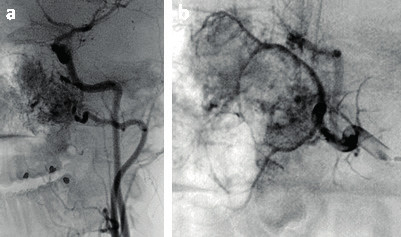 Předoperační angiografie (P7).