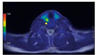 Fúze obrazů PET a MR v transverzální rovině přesně dokumentuje místo zvýšené akumulace radiofarmaka (18-FCH) K ložisku směřuje šipka. Náběr dat pro PET i MR část je provázen simultánně, nejedná se o fúzi prováděnou až po jednotlivých vyšetřeních. Vyšetření probíhá na přístroji PETMR GE Signa 3.0T.