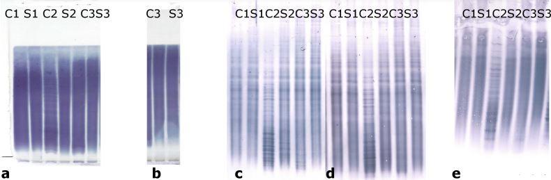 Oligoklonální volné lehké řetězce.<br> A) Shodné výsledky v agaróze a PAG IEF/AIB. V C1, C2 a C3 jsou jasně pozitivní oligoklonální fKLC, ale jen v C2 jsou jasně pozitivní oligoklonální fLLC. Ve vzorku C1 byly nalezeny dva slabé fLLC pásy při PAG IEF/AIB, zatímco hodnocení při agarózové IEF/IF bylo neshodné (dva pásy – hodnotící A, jeden pás – hodnotící B). Vzorek C4 je negativní. AIB – afinitní imunoblotting; C1–4 – párové vzorky nativních likvorů; C1d – likvor 1 ředěný 1/10 (jen pro fKLC); Co+ – pozitivní kontrola (monoklonální volné lehké řetězce [Bio-Rad – AbD Serotec, Praha, ČR] ředěné na 0,25 a 0,10 mg/l pro fKLC a 1,0; 0,5; 0,25 a 0,10 mg/l pro fLLC); Co– – negativní kontrola (preparát intravenózního imunoglobulinu G ředěný na koncentraci 250 mg/l IgG); fKLC – volné lehké řetězce typu kap pa; fLLC – volné lehké řetězce typu lambda; IEF – izoelektrická fokusace; IF – imunofi xace; PAG – polyakrylamidový gel; S1–4 – párové vzorky nativních sér ředěných 1/80 (kromě S1 vedle nativního C1, který byl pro analýzu fKLC ředěn 1/20) B) Příklad diskrepantního výsledku oligoklonální fLLC mezi agarózou a PAG IEF/AIB. V C1 jsou četné fKLC pásy, zatímco slabé fLLC pásyjsou tu patrné pouze na PAG IEF/AIB (dva pásy – hodnotící A, tři pásy – hodnotící B). Co+ je zde naředěna na 0,25 a 0,10 mg/l pro fKLC a 1,0 a 0,25 mg/l pro fLLC. AIB – afinitní imunoblotting; fKLC – volné lehké řetězce typu kappa; fLLC – volné lehké řetězce typu lambda; IEF – izoelektrická fokusace; PAG – polyakrylamidový gel