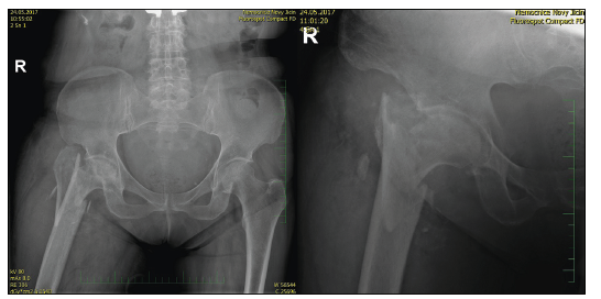 70letá žena s tříštivou zlomeninou trochanterického masivu a nekrózou hlavice femuru, úrazový RTG
