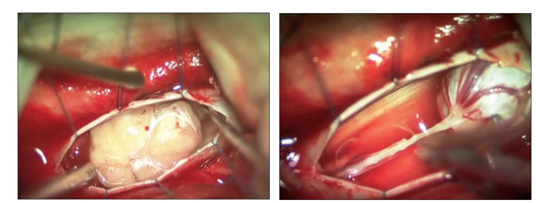Obr. 18 A, B. Myxopapilárny ependymóm filum terminale: peroperačné snímky [95].<br> Fig. 18 A, B. Myxopapillary ependymoma of the filum terminale, photographic view through the operating microscope [95].