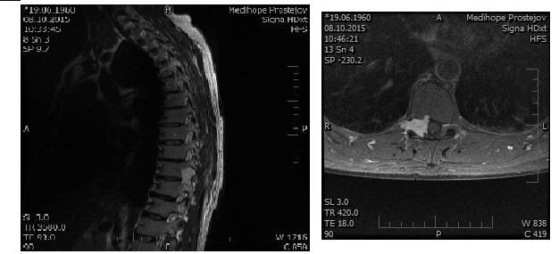 Obr. 9 A, B. Schwannóm Th9/10 zasahujúci do foramen Th9/10 vľavo, MR vyšetrenie: A. sagitálny rez v T2W sekvencii; B Axiálny rez v T1W sekvencii s podaním kontrastnej látky.<br> Fig. 9 A, B. Schwannoma at Th9/10 encroaching the left foramen intervertebrale Th9/10, MR image: A. sagittal T2W sequence; B. post-contrast axial T1W sequence.