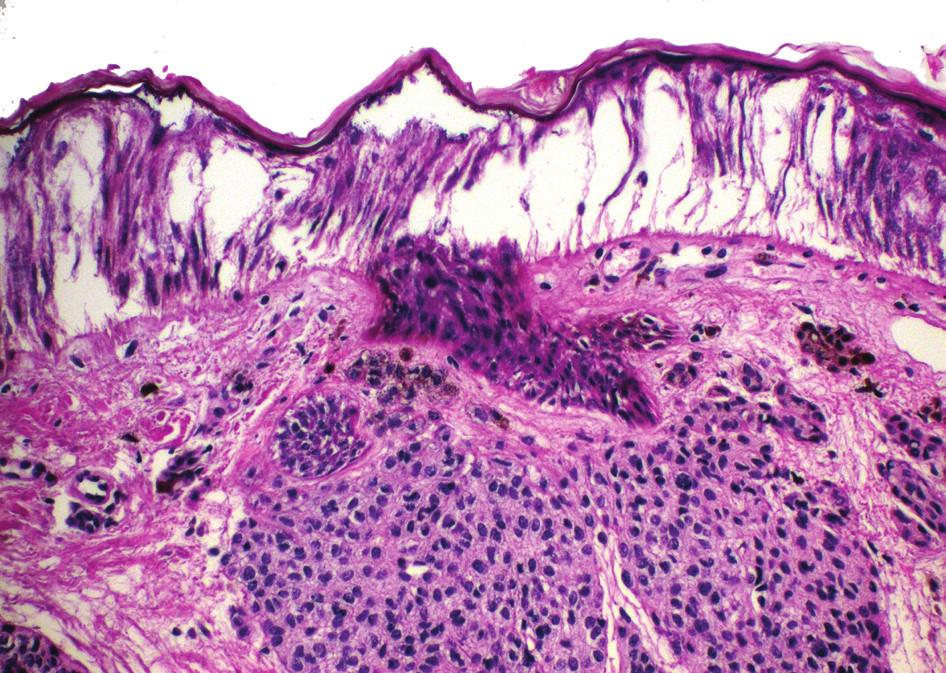 Fulgurační artefakt u melanocytárního névu – odloučení epidermis s protažením jader keratinocytů