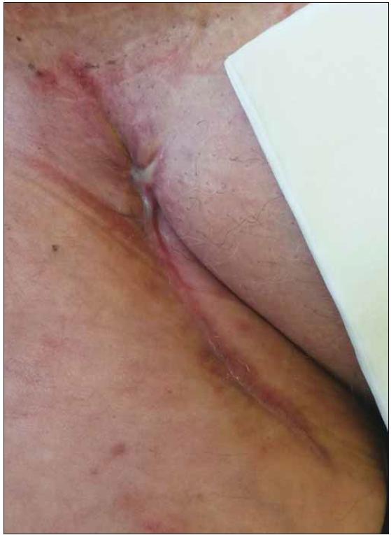Stejná pacientka, zhojená rána po aplikaci podtlakové terapie a preparátů vlhkého hojení.<br> Fig. 2. Same patient, healed wound after negative pressure wound therapy and moist wound healing application.