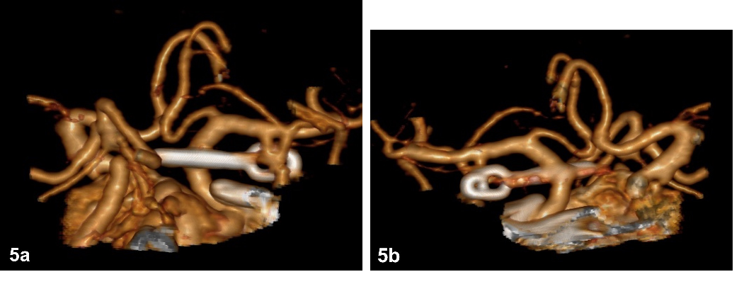 Fig. 5a–b. Postoperative CTA depicting a straight clip completely occluding the aneurysm.<br>