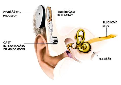 Implantát pro kostní vedení Bonebridge. Tvoří jej zevní část obsahující procesor a vnitřní část implantovaná pod periost za uchem a do kosti. Upraveno se svolením firmy Medel.