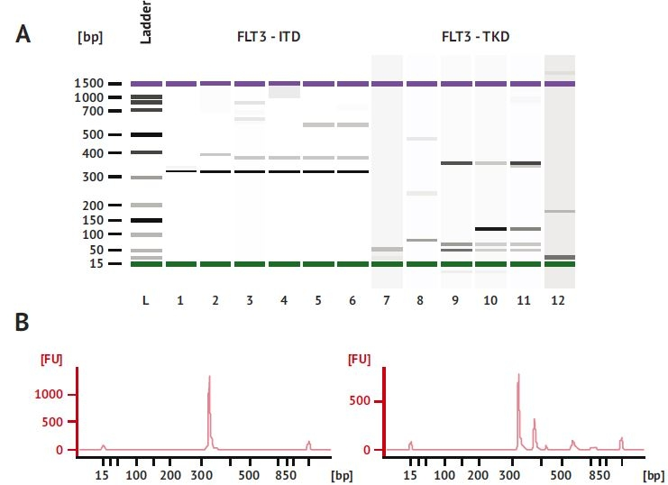Separácia PCR produktov FLT3-ITD na mikročipe Bioanalyzer 2100.