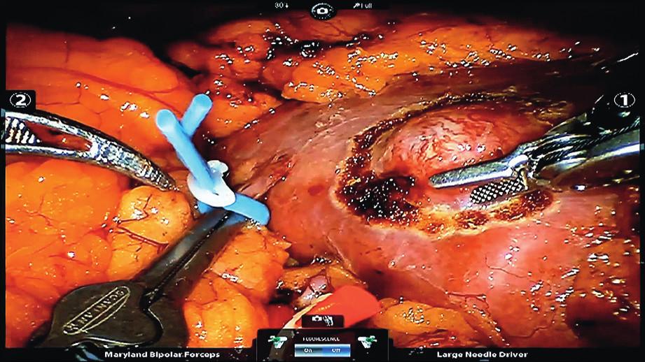 Demarkace nádoru levé ledviny pomocí elektrokoagulace