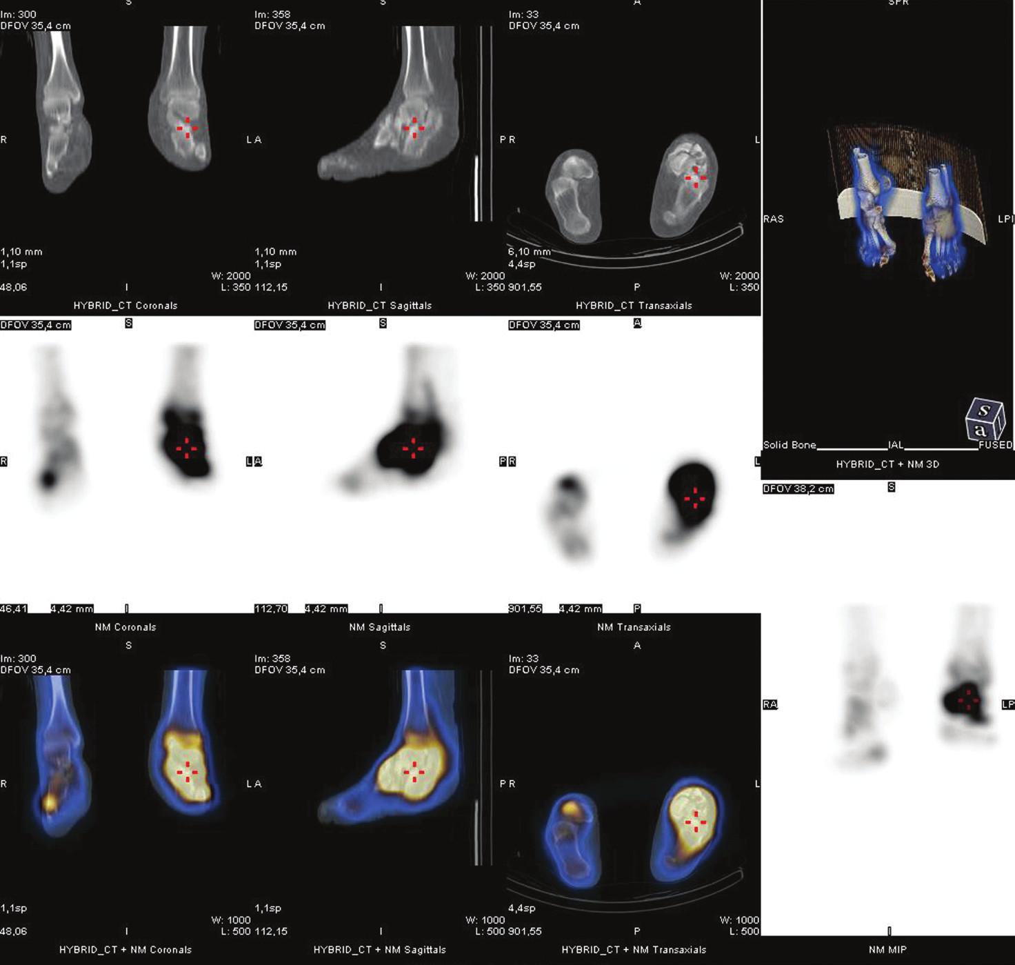 Fúze funkčního a strukturního obrazu (SPET/CT) u stejného pacienta. Tento způsob zobrazení umožňuje přesnou anatomickou lokalizaci metabolických změn
