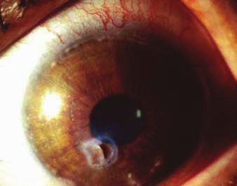 Peripheral infiltration in perimeter of cornea and paracentral perforation of infiltrated cornea