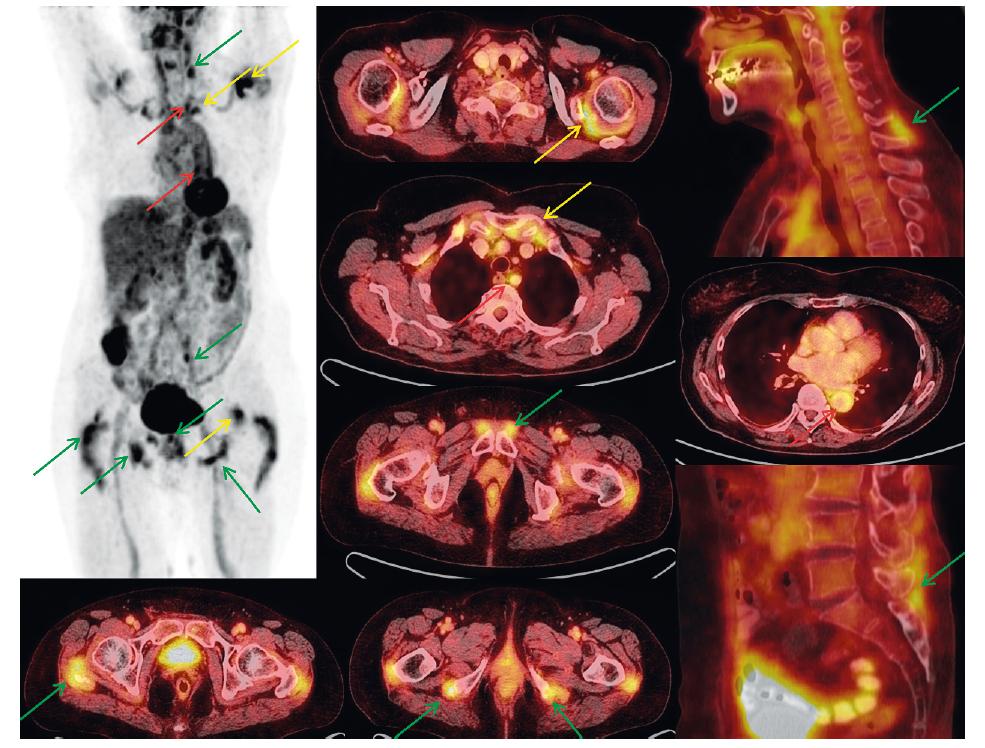 FDG PET vyšetření trupu u 77leté pacientky s klinickým obrazem PMR a nálezem na PET/CT. MIP PET (černobílý) obraz pootočen, aby nedošlo k sumaci nálezů při střední čáře. Dále detaily hybridních PET/CT obrazů na jednotlivá místa postižení (axiální a sagitální roviny). Artikulární/periartikulární zobrazení (ramena, sternoklavikulární skloubení) – žluté šipky. Extraartikulární nálezy (cervikální a lumbální interspinózní prostory, okolí sedacích hrbolů, velkých trochanterů, symfýzy) – zelené šipky. Vaskulární zobrazení (extrakraniální tepny, aorta a její odstupy) – červené šipky.