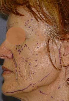 Obr. 1c Pacientka se středně vyjádřenými gravitačními změnami, výraznějšími objemovými a kožními změnami. Je patrný pokles na hraně čelisti, statické vrásky, tenká kůže, dominuje atrofie tuku s maximem na tvářích a temporálně.