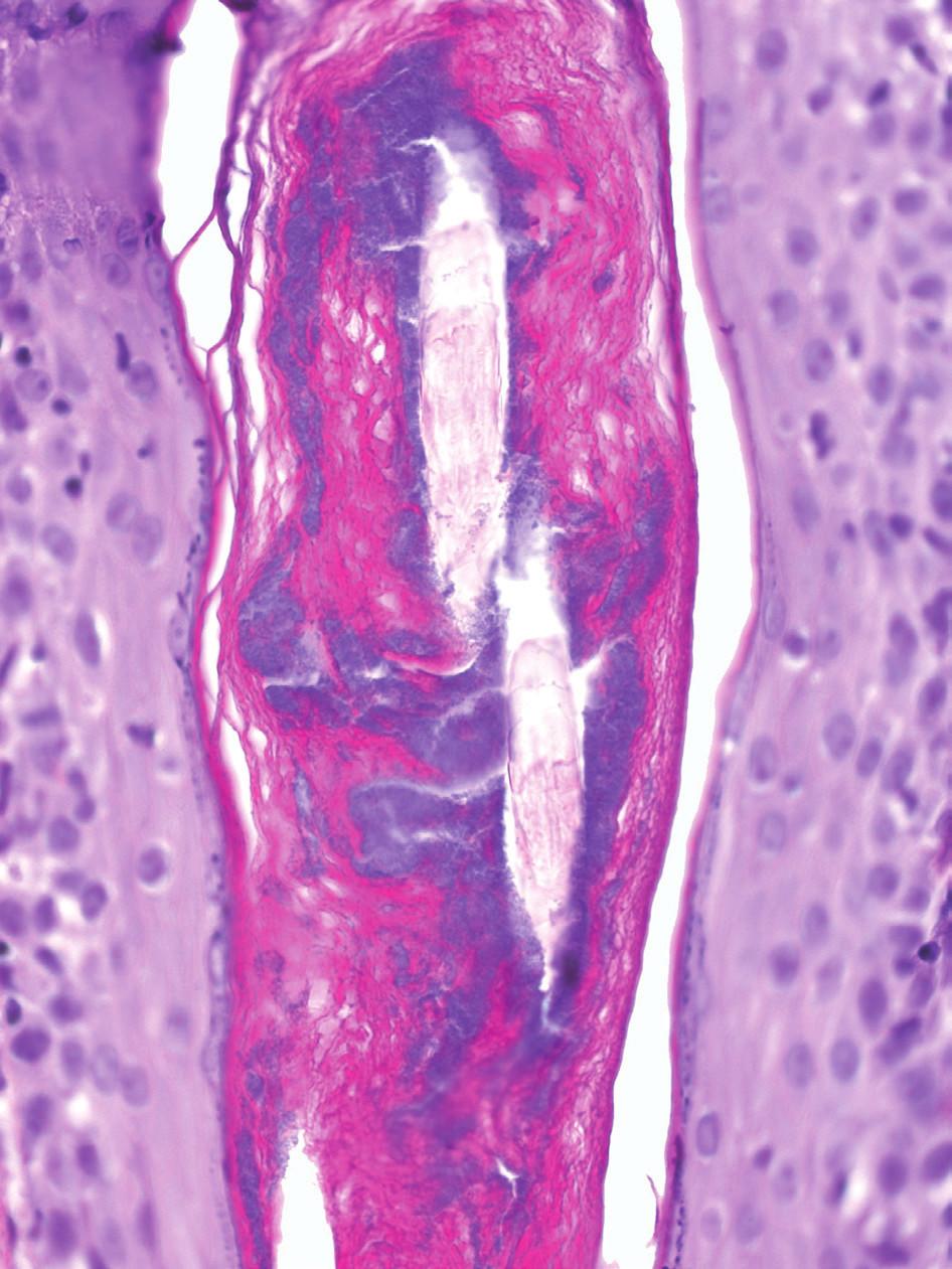 Bazofilně se znázorňující akteriální kolonizace vlasového folikulu (HE 200x)