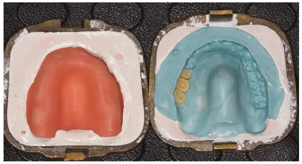 Příprava na polymerizaci protézových zubů k definitivní desce<br> Fig. 3 Preparation for polymerization of prosthetic teeth to the final basis