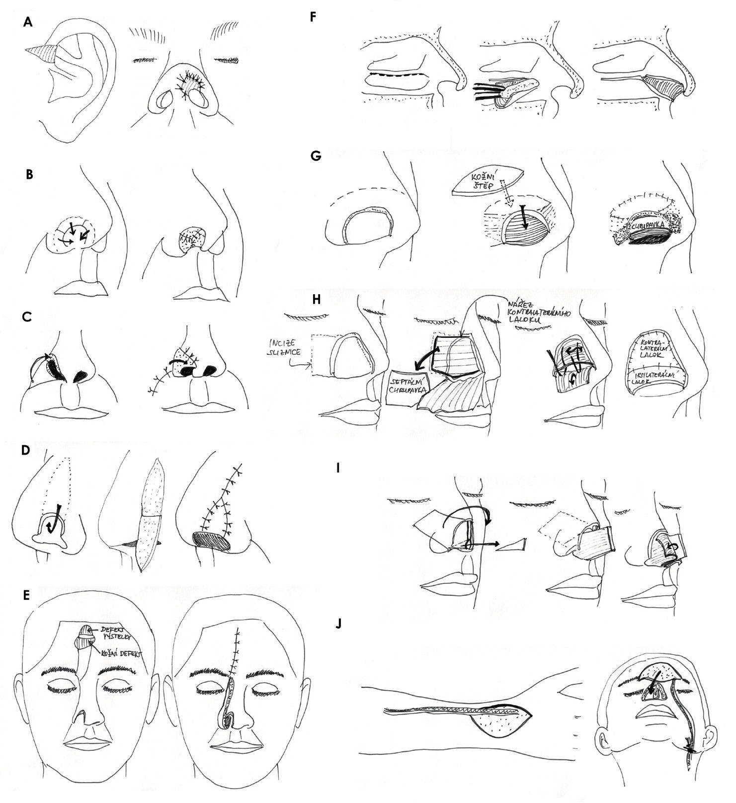 Rekonstrukce vnitřní výstelky nosu: A) kompozitní štěp, B) přetočení okrajů defektu nosu, C) místní lalok, D) zevní překlopný lalok, E) zdublovaný čelní lalok, F) lalok z dolní skořepy (turbinate flap), G) dvoustopkový vestibulární kožní lalok, H) septální mukoperichondriální lalok, I) pivotální kompozitní septální chondromukozní lalok, J) mikrovaskulární volný lalok. Zdroj: Kresba autora podle Menick Frederick J. Aesthetic nasal reconstruction in Neligan, Peter C. Plastic Surgery, Vol. III., Craniofacial, Head and Neck Surgery. Elsevier Saunders London, 3rd ed, 2013.