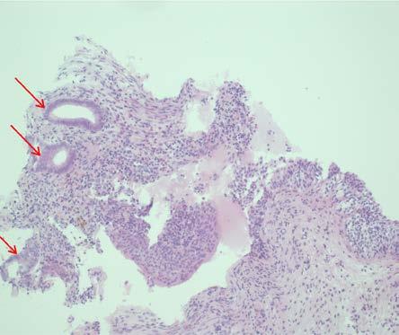 Histologický preparát endometriózy močového měchýře, hematoxylin-eosin, zvětšeno 200×, šipky ukazují žlázky endometria (fotografie poskytnul MUDr. Jan Nožička Ph.D.)<br> Fig. 6. Histological specimen of endometriosis of the bladder, hematoxylin-eosin, magnification 200×, arrows show endometrial glands (photos provided by Jan Nožička M.D., Ph.D.)