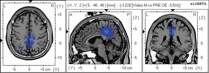 Statistické ne-parametrické mapy sLORETA diference v beta-2 pásmu při porovnání pozorování 2D videa oproti klidovému záznamu při otevřených očích. Modrá barva znamená snížení zdrojové aktivity v gyrus cinguli BA 31, a precuneu BAs 7,5. Anatomické řezy Talairachova obrazu mají šedou barvu (L – vlevo, R – vpravo).