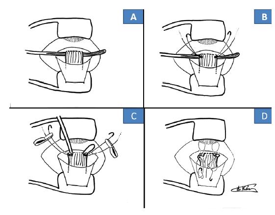 Operační technika cul-de-sac: zavedení Davielovy lžičky (A), založení stehů z Ethibondu 5-0 (B), odstřižení svalu se stehy těsně u skléry (C), zpětné prošití do původního úponu (D)