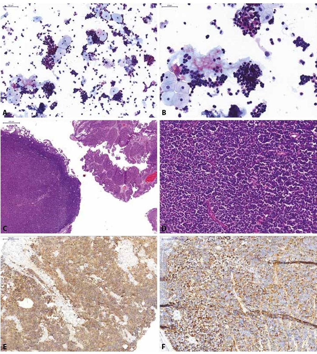 Pacientka s mikroskopickou hematurií a dilatací dutého systému pravé ledviny na USG.<br> (A, B) Spontánně vymočená moč; normální urotelie a záplava výrazně atypických relativně malých elementů s hyperchromázií a nepravidelnostmi jader, při minimálním množství cytoplazmy, jedná se o neoplastické elementy, avšak na základě morfologie nelze s jistotou potvrdit jejich uroteliální origo; kategorie: jiné.<br> (C, D) Definitivní histologický materiál (TURT jeden měsíc po pozitivní močové cytologii) od pacientky; histologicky zastiženy dvě odlišné komponenty, přítomna je jednak uroteliální neoplasie, naznačeně papilárně rostoucí, místy vytvářející struktury spíše ploché léze (karcinoma in situ), reagující pozitivně s cytokeratinem CK7, CK20 a AE1/3. Dále zastižena objemná, většinová komponenta tvořená malobuněčnou lézí, která je negativní v průkazu vimentinu, CD26, CD79a, CD3, CD45, S-100 proteinem, CD99, HMB45; reaguje pouze tečkovitě pozitivně s cytokeratinem OSCAR, pozitivní jsou nádorové struktury v průkazu synaptofyzinu<br> (E), CD56 a chromograninu (F). Jedná se o malobuněčný karcinom s neuroendokrinními rysy vycházející z urotelu.