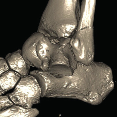 Třídimenzionální CT rekonstrukce hlezna
