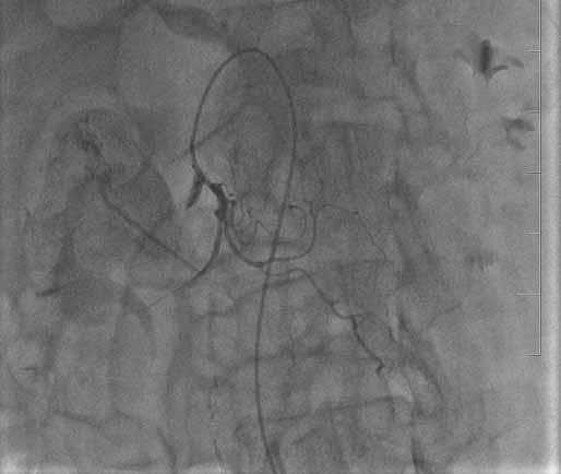 Angiografie – únik kontrastní látky do dutiny pankreatické pseudocysty. Fig. 2. Angiography – leakage of contrast medium into the pancreatic pseudocyst cavity.