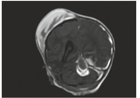 MR vyšetření, koronární řez – stejný pacient jako na obr. č. 3 a 4, odstup 7 dní: V obrazech T1W FFE SENSE jsou patrné subakutní subdurální hematomy podél tentoria a levé mozkové hemisféry, dále hematom mediálně v zadní jámě, nově rozvíjející se ischemické změny T-P-O vlevo. Velikost kefalhematomu nyní lehce zmenšena.<br> Fig. 5. MR scan, coronal view – the same patient as No. 3 and 4 – interval 7 days: T1 FFE SENSE signal intensity are indicative of left sided subacute subdural hematoma, intracerebellar hemorrhage, newly developing left T-P-O ischemic changes.