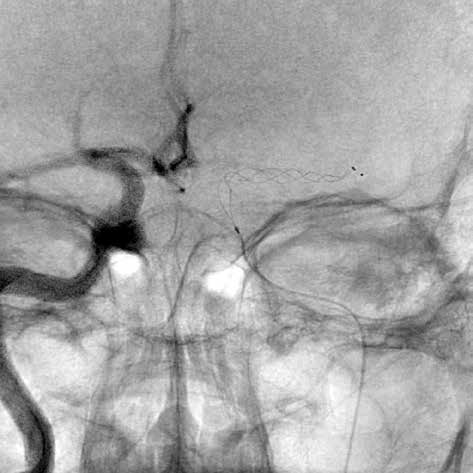 Stent retriever v M1 arteria cerebri media vlevo<br> Fig. 1: Stent retriever in the M1 part of left middle cerebral artery