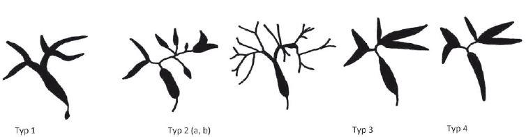 Typy postižení žlučových cest, cholangiografi e (upraveno dle [13]).