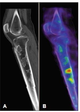 Low dose CT (A) a SPECT (B) obraz pravého kolena, sagitální řez. Je patrná nestejná metabolická reakce kosti v místě infarktu v závislosti na stadiu hojení.